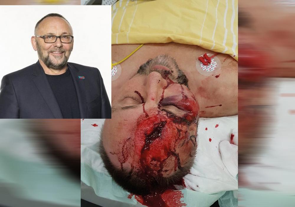 Der Bundestagsabgeordnete Frank Magnitz kam schwer verletzt ins Krankenhaus. Fotos: AfD Landesverband Bremen